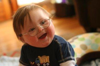 Sindrome di Down: dalla diagnosi alla terapia. Al via l'evento formativo ECM