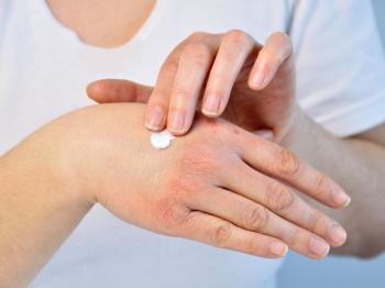 trattamento-della-dermatite-atopica-come-si-cura-1200-900
